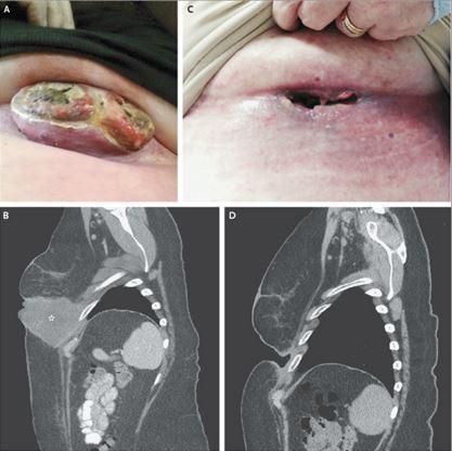 Figura 1: In alto (A e C) risoluzione della lesione cutanea dopo 3 settimane (unica somministrazione di farmaco); In basso (B e D) evidente involuzione della massa cutanea e toracica dopo 6 settimane (unica somministrazione di farmaco)