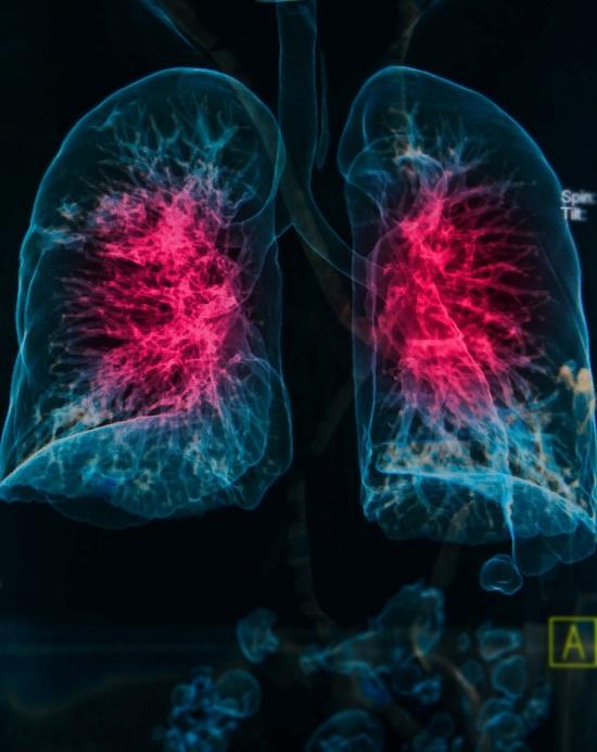 Terapia empirica della polmonite acquisita in comunità: si ma quale?